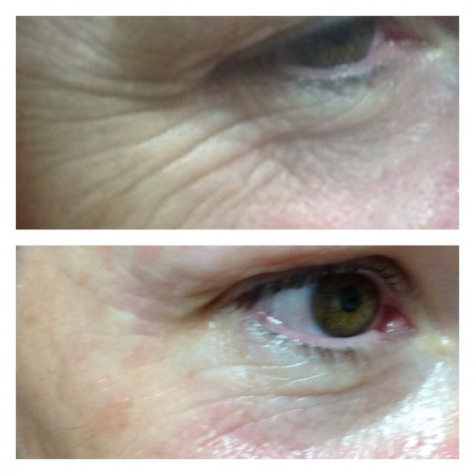 Intraceuticals Facial Charges